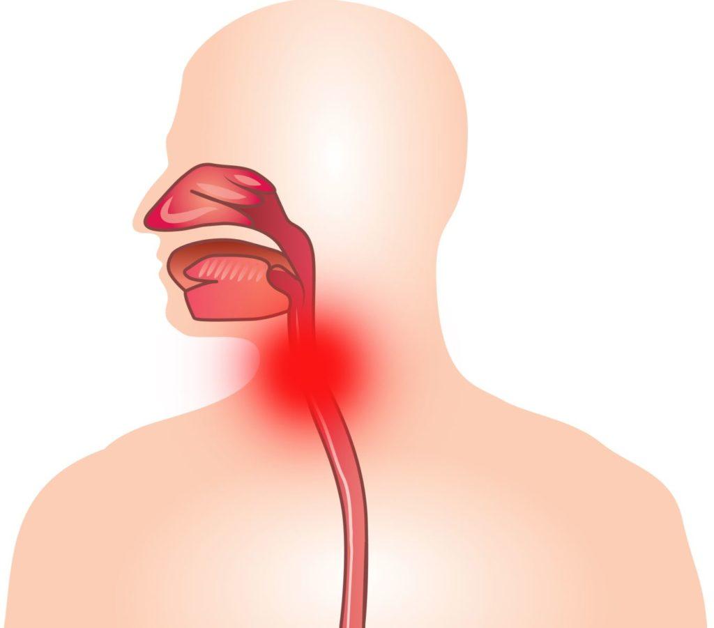 Ларингит - симптомы, причины